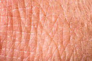 Texture of human skin. Extreme close up macro shot